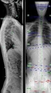 Chiropractic Oshkosh WI X-Ray
